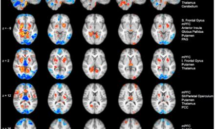Potenzialità della mindfulness nell'attenuazione del dolore indipendentemente dalle convinzioni e aspettative